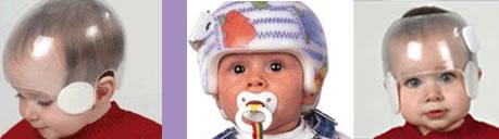 babies_helmet